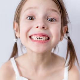 """Zahnheilkunde für """"klein"""" in der Zahnarztpraxis für GROSS und klein"""